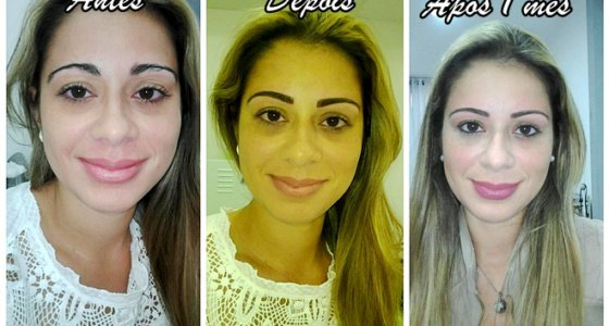 Micropigmentação de sobrancelha | Passo a passo e resultado